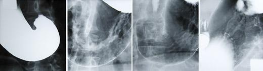 胃 部 レントゲン 検査
